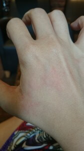 A picture of hives on my right hand from 20 June, 9:42a.m.